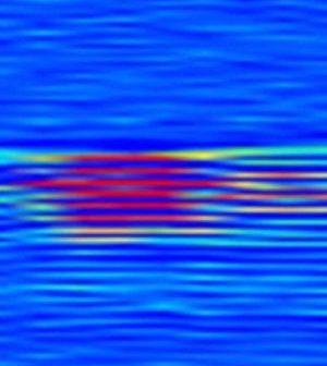 Μαλακοί βιολογικοί ιστοί μπορούν να δημιουργήσουν πιεζοηλεκτρισμό